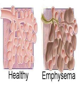 Emphysema-6