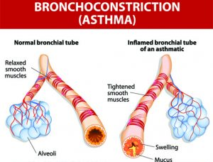 Asthma Treatment Singapore