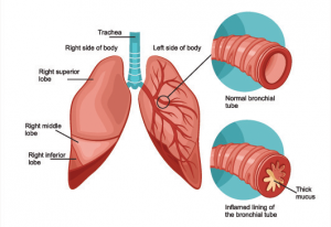 Bronchitis Treatment Singapore