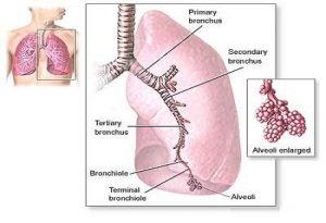 pulmonary_fibrosis